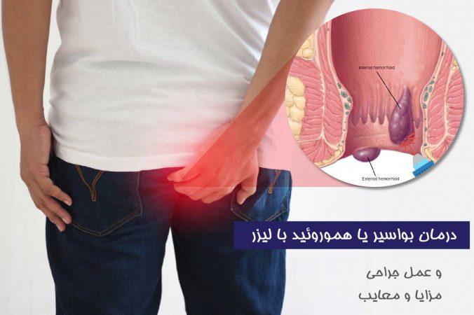 درمان بواسیر با لیزر و جراحی