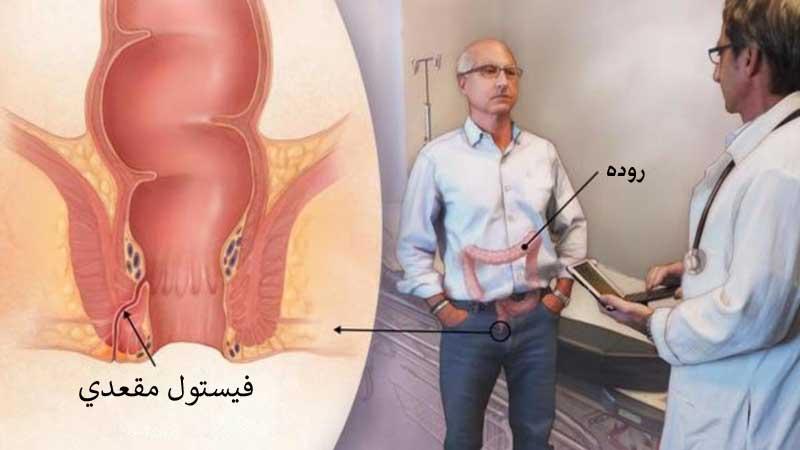 عکس فیستول مقعدی برای شناسایی سریع تر بیماری