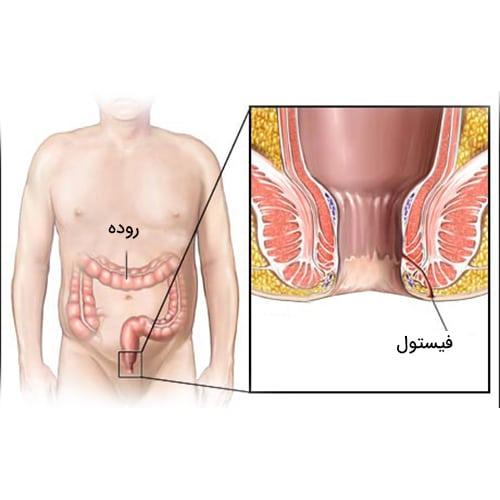 درمان فیستول مقعدی (آبسه) با لیزر