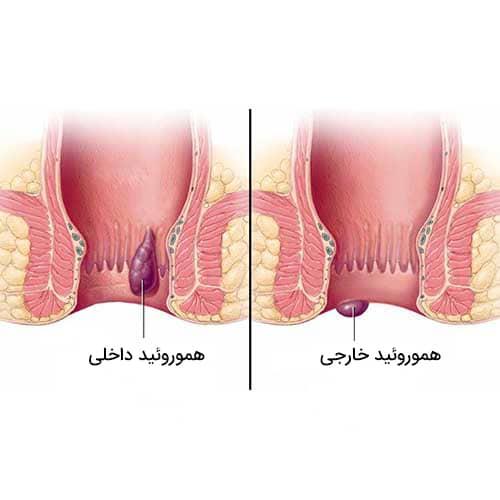درمان بواسیر (هموروئید) با لیزر