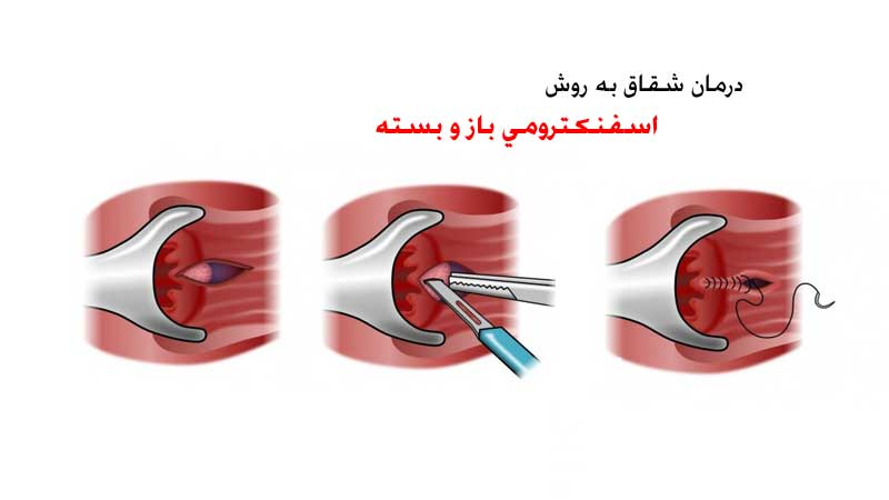 اسفنکتروتومی باز و بسته روشی برای درمان شقاق یا فیشر