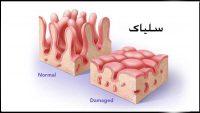 بیماری سلیاک چیست؟ علت اصلی، علائم و نحوه تشخیص آن