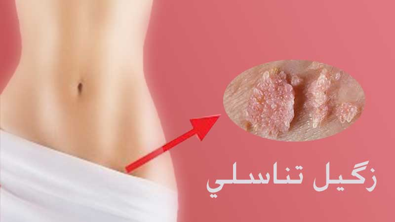 بهترین روش درمان زگیل تناسلی در زنان و مردان با لیزر