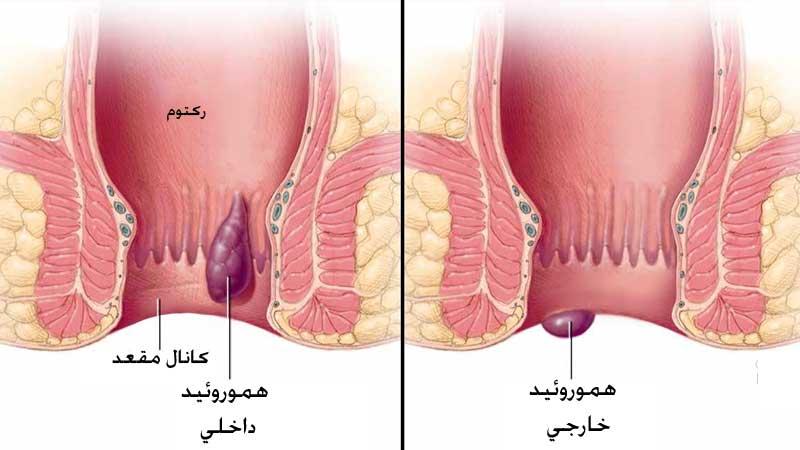 بواسیر داخلی و خارجی چیست؟ علائم و روش های درمان آن