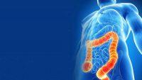 سندرم روده تحریک پذیر چه نوع بیماری است و چگونه درمان می شود؟