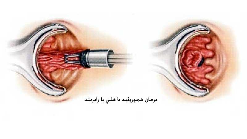 رابربند چیست و چگونه باعث درمان بواسیر یا هموروئید می شود؟