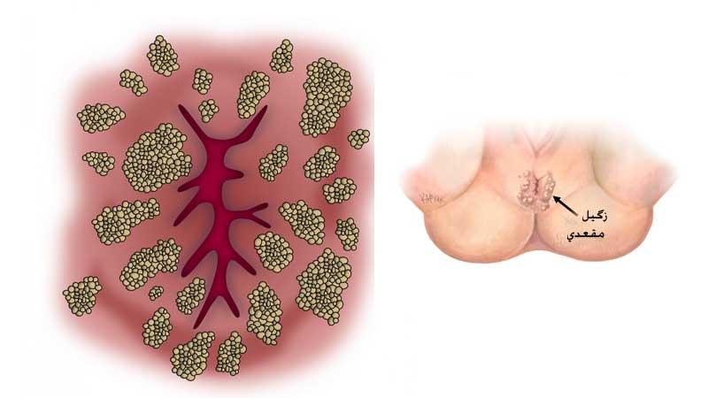 علت، علائم و درمان زگیل مقعدی در زنان و مردان با لیزر