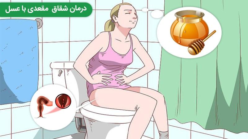 اثربخشی درمان شقاق مقعدی با عسل در طب سنتی