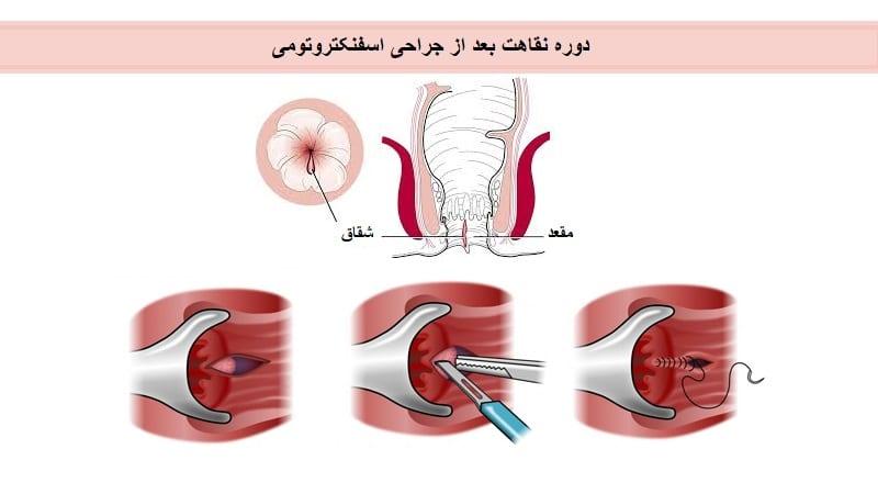 دوره نقاهت بعد از درمان شقاق با جراحی اسفنکتروتومی