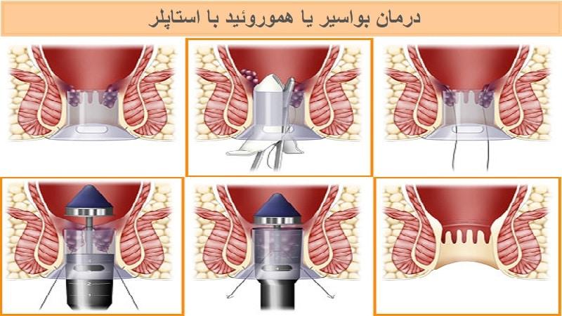 درمان بواسیر یا هموروئید داخلی و خارجی با استاپلر یا هموروئیدوپکسی
