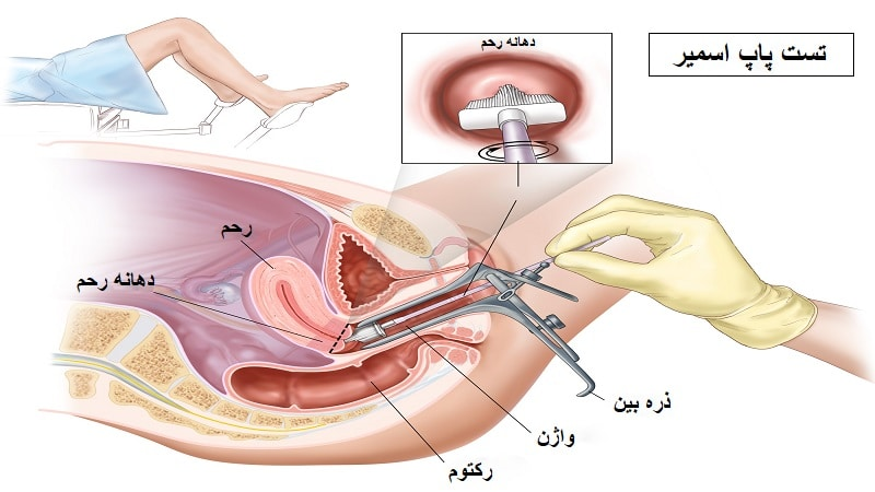 تصویر: https://darmanlaser.com/wp-content/uploads/2019/10/Pap-smear.jpg