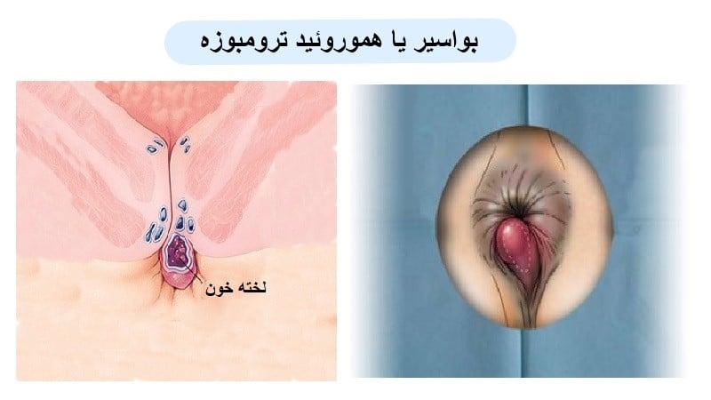 علت بواسیر یا هموروئید ترومبوزه و روش های جراحی و درمان خانگی
