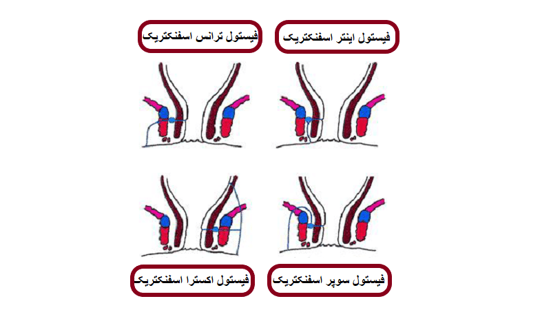 [تصویر:  types-of-fistulla.png]