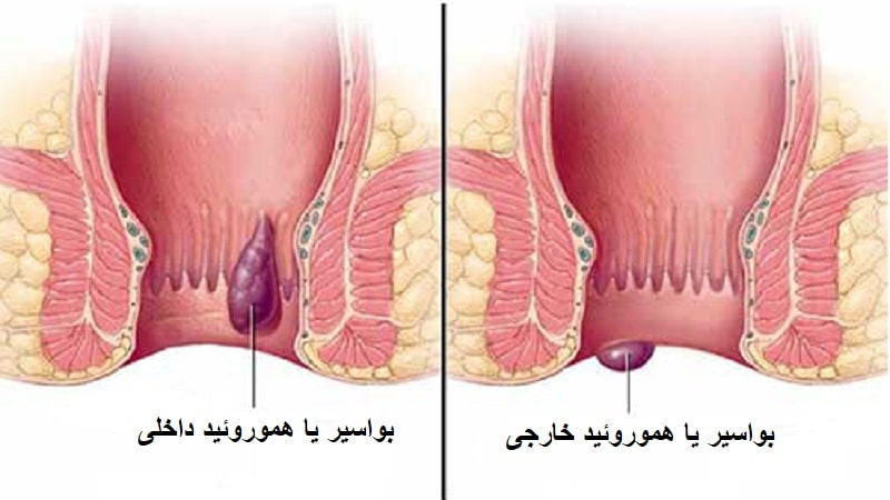 درمان بواسیر با لیزر و عمل جراحی هموروئید بدون بستری، درد و خونریزی
