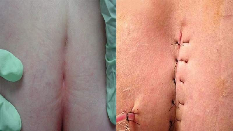 تصاوير بعد از جراحي و درمان كيست مويي با ليزر