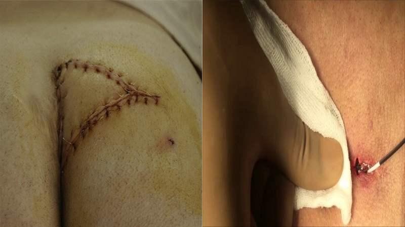 عکس کیست مویی بعد از جراحی