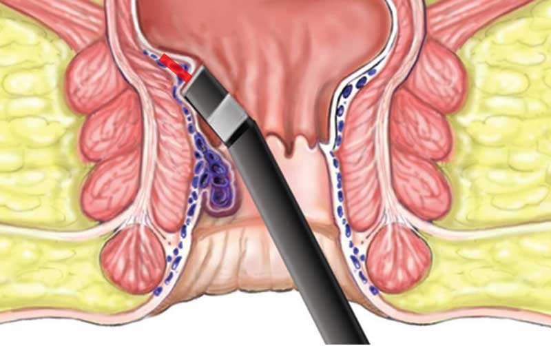 عمل جراحی هموروئید درمان بواسیر با لیزر