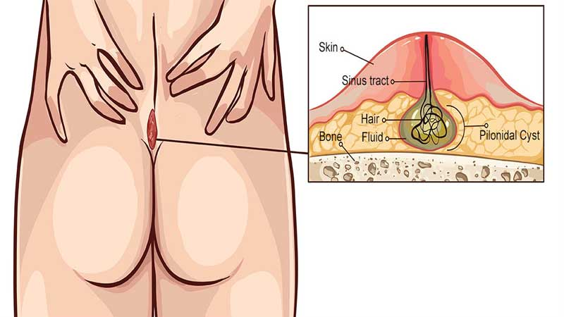 عوارض کیست مویی ابتلا به سرطان پوست و عفونت خون