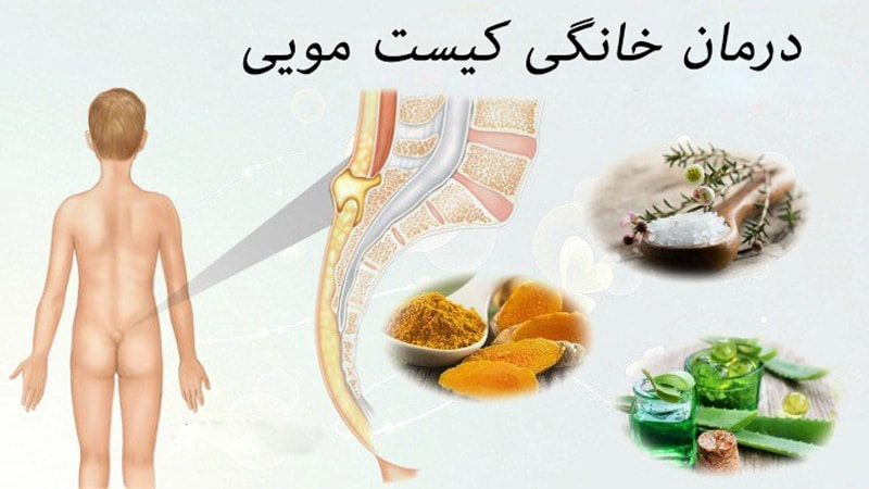 درمان خانگی کیست مویی با داروهای گیاهی