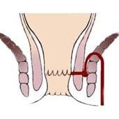 درمان فیستول