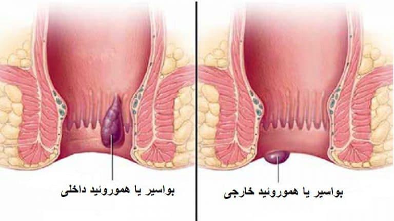 [تصویر:  hemorrhoid-768x432-1.jpg]